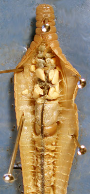 Annelida, Laboratory in Bio 1003Oligochaeta Anatomy